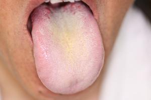 赤ちゃん 舌 黄色