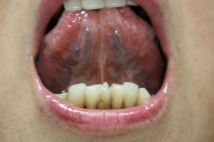 の 口内炎 舌 裏側